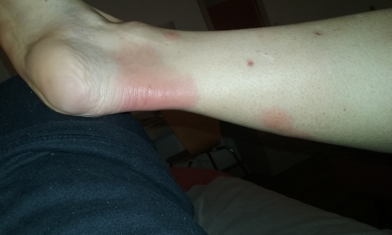 bed bug bite rash on ankle.